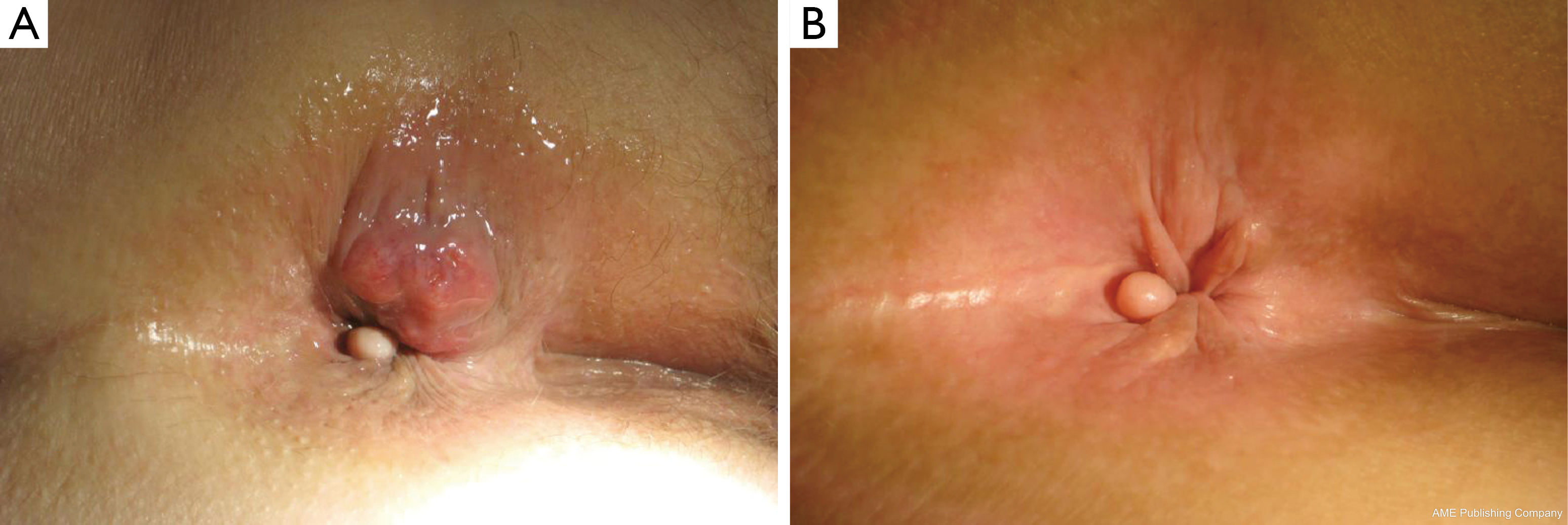 Anal skin cancer galleries 953